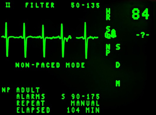 electrocardiogram-16948_1920